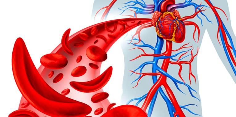 Anemia por deficiência de ferro: causas, sintomas e tratamento